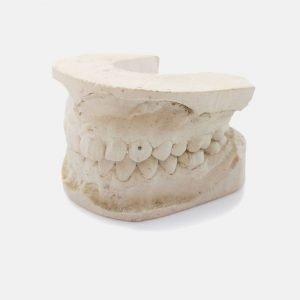 Vintage Dentist's Teeth Mold Plaster Cast